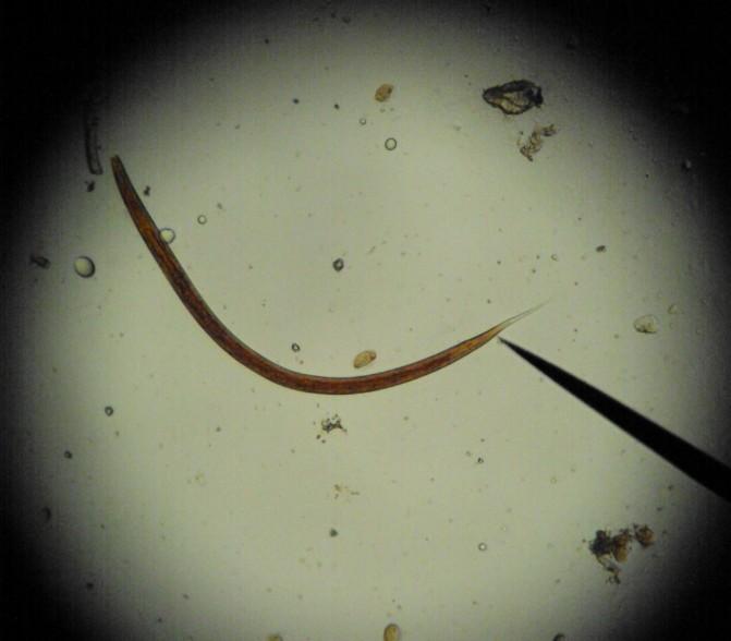 haemonchus larve